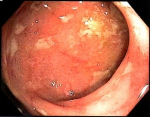 The white areas are ulcers (image is from author's husband's colonoscopy).