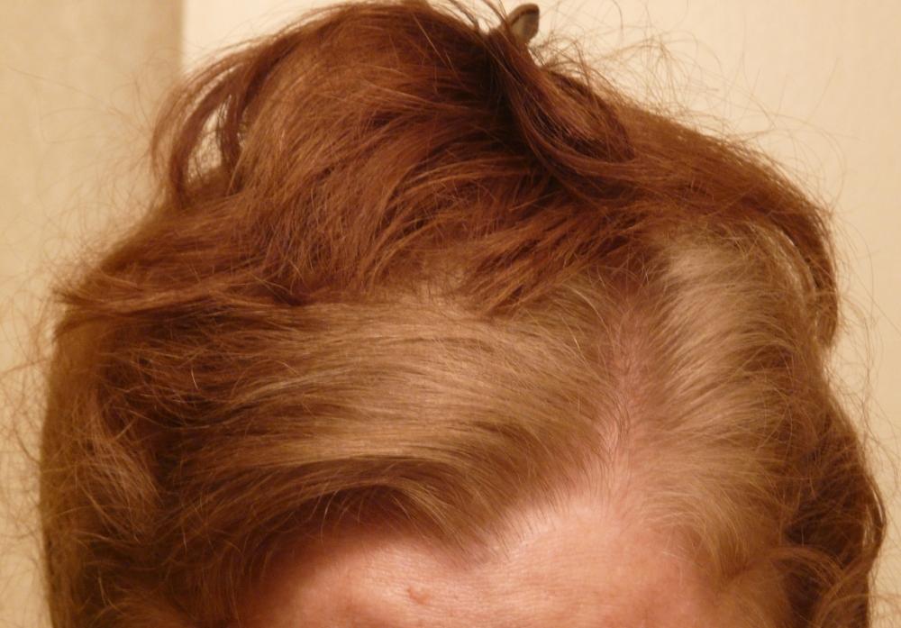 Orange Hair: Misadventures in Going Natural from Dark Brown (Part III) (1/6)