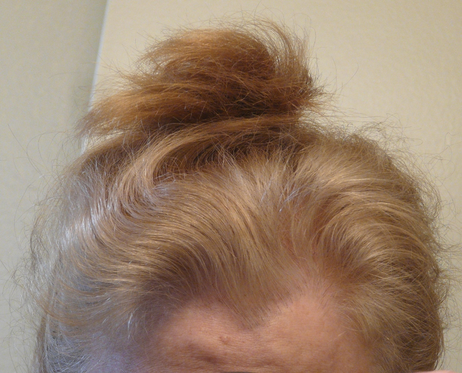 Orange Hair Misadventures In Going Natural From Dark Brown Part Iv
