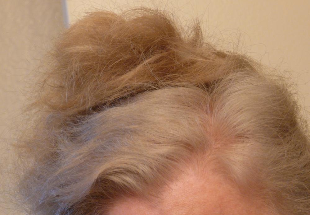 Orange Hair: Misadventures in Going Natural from Dark Brown (Part IV) (2/6)
