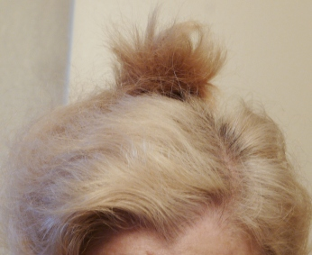 Bleached hair with roots